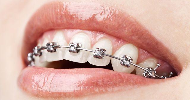 braces care